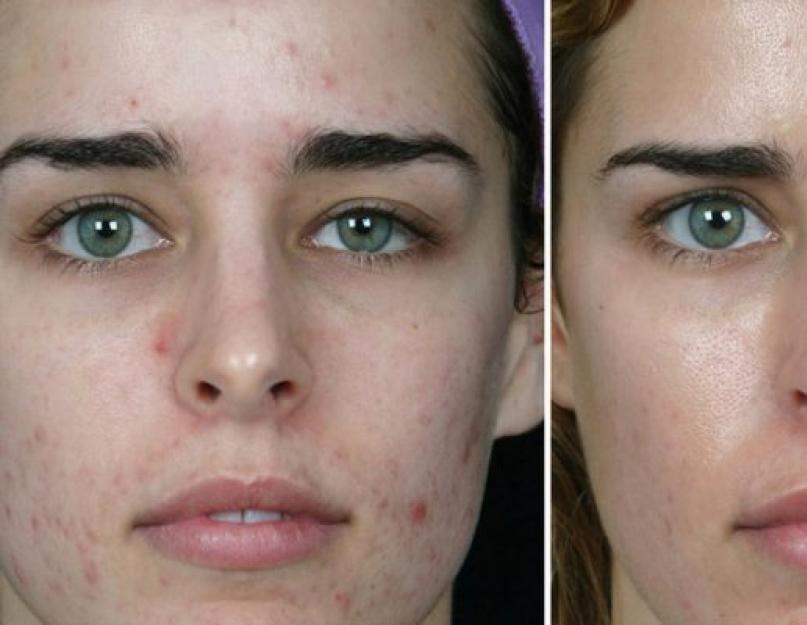 az arc megtisztítása után vörös foltok mint eltávolítani